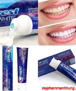 Kem đánh răng Crest 3D White Radiant Mint Mỹ 116g