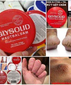 Sáp dưỡng Glysolid Hautbalsam cho da khô á sừng, vẩy nến, nứt nẻ chân tay